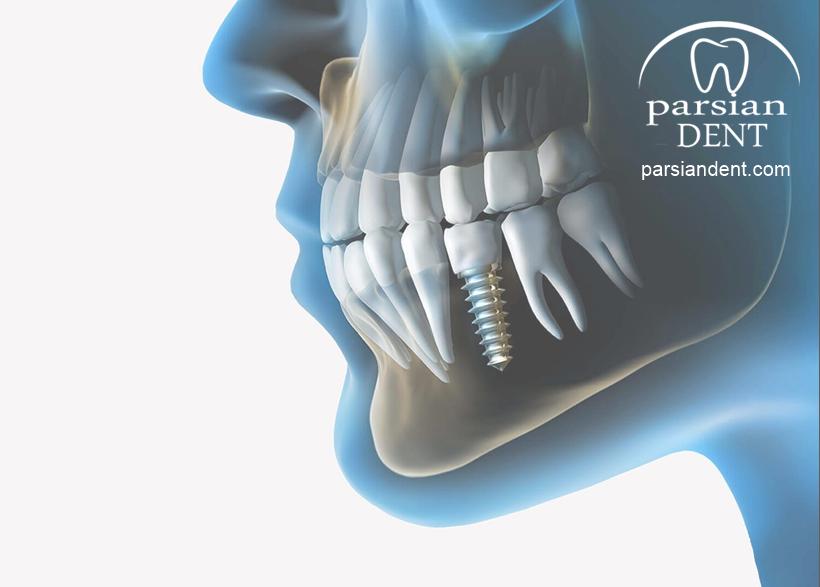 مزایا و معایب ایمپلنت دندان