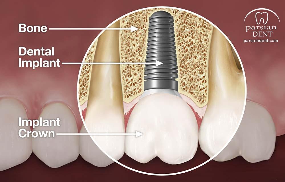همه چیز درباره ایمپلنت های دندانی