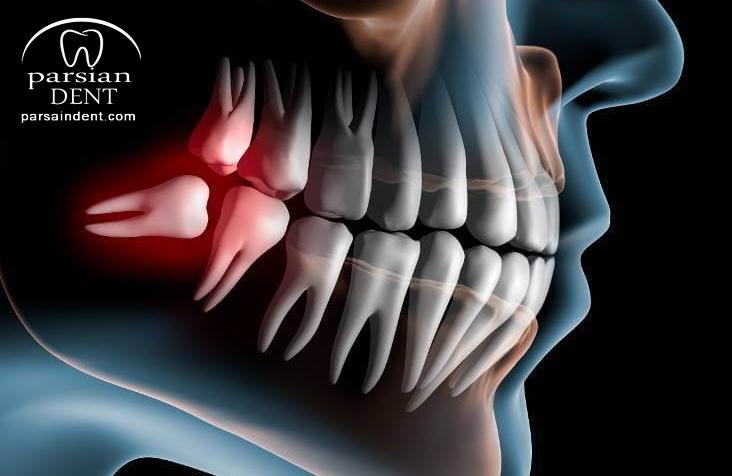 آنچه درباره دندان عقل و زمان کشیدن آن باید بدانیم؟