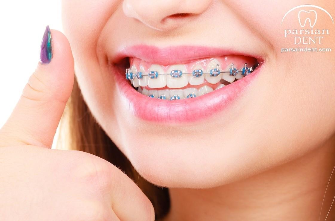 ارتودنسی: چگونه در درمان ارتودنسی بهداشت دندان ها را حفظ کنیم؟